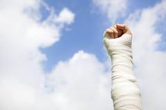 Raise bandaged arm  with blue sky background. Raise bandaged arm  with blue sky and cloud background Royalty Free Stock Photo
