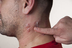 Raised red bumps and blisters caused by the shingles virus Royalty Free Stock Images