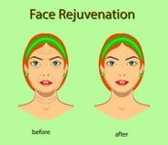 Rajeunissement de visage, illustration de vecteur avec avant après effet illustration stock
