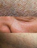 Ramassage de texture de peau Photographie stock libre de droits