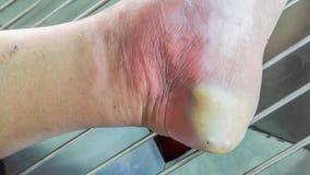 Rana cukrzycowa stopa obrazy stock