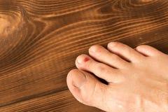 Rana na jego nodze Krwisty b?bel na jego palcu z bliska Na drewnianym tle obrazy stock