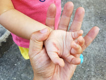 Rana w ręce dziecko od żelaznego oparzenie w ojca ` s ręce Zdjęcie Royalty Free