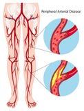 Rand slagaderlijk ziektediagram vector illustratie