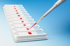 Rangée de prises de sang pour la microscopie et la pipette photographie stock
