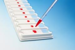 Rangée de prises de sang pour la microscopie et la pipette photographie stock libre de droits