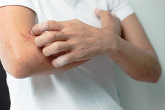 Rany od chrobotliwej alergii zbroić kobiety Zdjęcia Stock