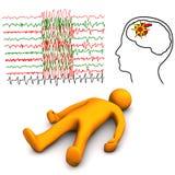 Rappe apoplectique et épileptique illustration de vecteur