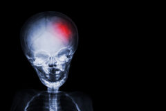 rappe filmez le crâne de rayon X et le corps de l'enfant avec la couleur rouge à la tête Concept neurologique photographie stock libre de droits
