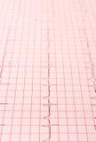 Rapport de graphique d'électrocardiogramme Image libre de droits