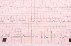 Rapport de graphique d'électrocardiogramme Photo libre de droits