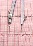 Rapport et calibres de graphique d'électrocardiogramme Photos libres de droits