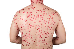 Rash on the back. The back of man with chickenpox isolated on white background Stock Photography