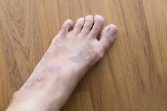 Rash eczema on woman skin foot Royalty Free Stock Images