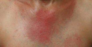 Rash on sensitive skin Stock Photography