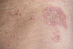 Rash on sensitive skin Royalty Free Stock Images