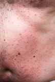 Rash or sun allergy Royalty Free Stock Photography