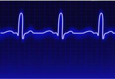 Rastro de ECG Fotos de archivo