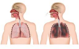 Rauchende medizinische Illustration der Lunge auf weißem Hintergrund, Mann mit cigerette lizenzfreie abbildung