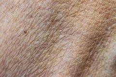 Raue trockene Haut auf der Hand nach dem Ein Sonnenbad nehmen, Sehne und blauer Ader Stockfotos