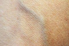 Raue trockene Haut auf der Hand nach dem Ein Sonnenbad nehmen, Sehne und blauer Ader Lizenzfreie Stockfotos