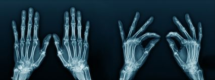 -ray image hand and finger. X-ray image hand and finger, action of hand and finger x-ray Image in blue tone on dark background royalty free stock images