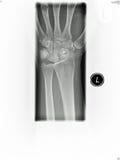 ray wrist x 免版税库存图片