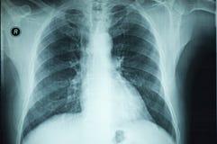 ray x część ciała Obraz Stock