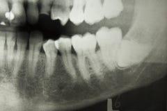 Rayo de X dental Fotos de archivo libres de regalías