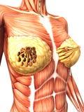 Rayo del cáncer de pecho X Imagen de archivo