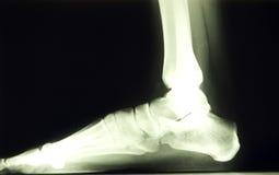 Rayo del pie x Imagen de archivo libre de regalías