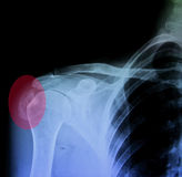 Rayon X d'épaule de painfull, tendon calcifié images libres de droits