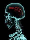 Rayon X de crâne avec l'arme à feu photo libre de droits