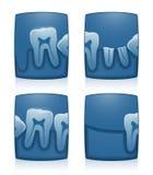 Rayon X de dent Image stock