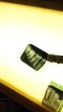 Rayon X de dents images libres de droits