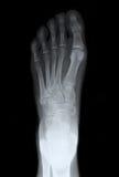 Rayon X de dessus de pied gauche Image libre de droits
