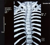 Rayon X de l'épine IRM photos stock