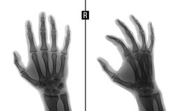 Rayon X de la main Montre la fracture de la base du phalange proximal du majeur de la main droite repère Négatif images libres de droits