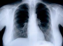 Rayon de x médical de santé Images libres de droits