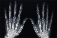 Rayon X de mains images stock