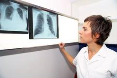 Rayon X de poumon, embolismPE pulmonaire, hypertension pulmonaire, C Image stock