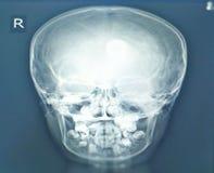 Rayon X de sinus de Paranasal trouvant la dent dans le sinus maxillaire droit Aucune sinusite Aucune destruction ou masse osseuse image stock