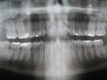 Rayon X dentaire Images libres de droits