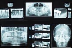 Rayon X dentaire Photographie stock libre de droits