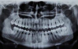 Rayon X dentaire panoramique images libres de droits