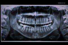 Rayon X dentaire panoramique avec un canal radiculaire images libres de droits