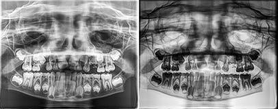 Rayon X dentaire panoramique d'un enfant, à feuilles caduques - dents de lait s'élevant de l'os de mâchoire image stock