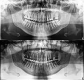 Rayon X dentaire panoramique, dents fixes, joint d'amalgame dentaire, couronne dentaire et pont, dent de sagesse remplie de canal Photo libre de droits