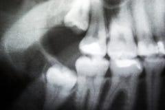 Rayon X des dents de sagesse problématiques Photographie stock