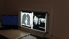 Rayon X des organes internes dans une clinique médicale banque de vidéos